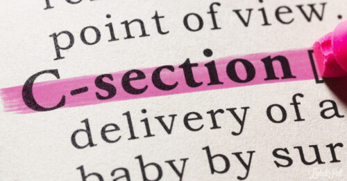 What to expect with a c section